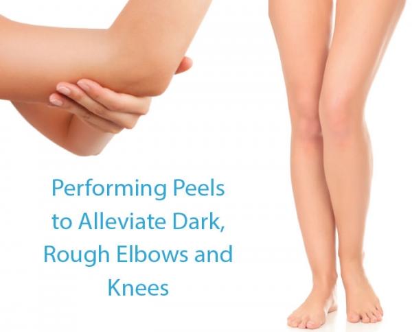 Performing Peels to Alleviate Dark, Rough Elbows and Knees