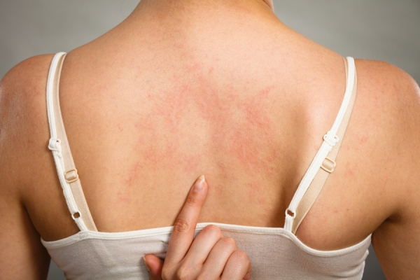 Understanding Urticaria: Triggers, Causes, Types, and Variances
