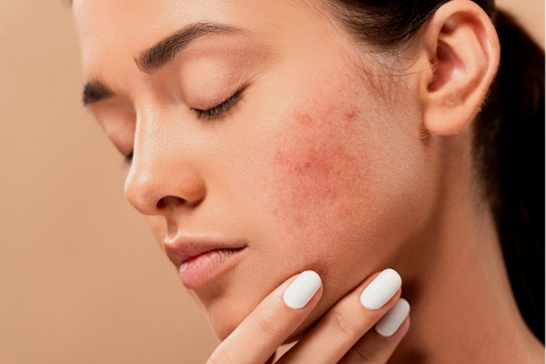 Cystic Acne Considerations: Pathology & Treatment