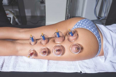Cellulite Cupping: An Ancient Method Gaining Popularity Today