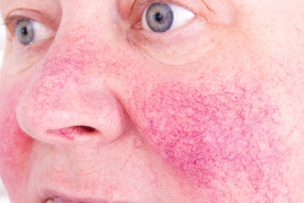 Can You Spot the Difference? Couperose Versus Rosacea