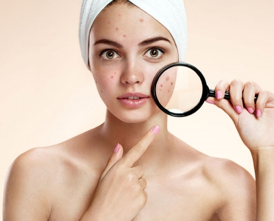 The Difference Between Dry Acne and Oily Acne