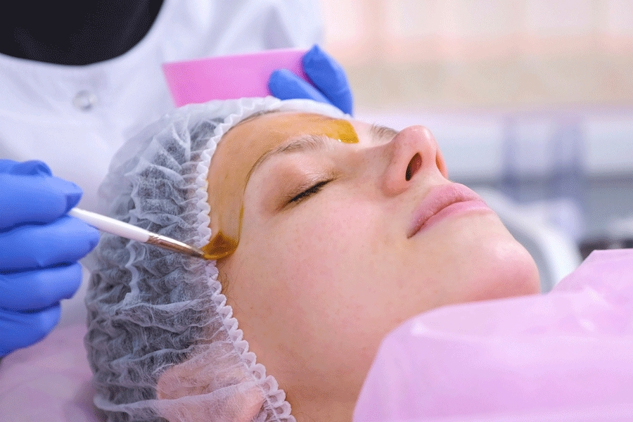 A Guide to Chemical Peels: Alpha Hydroxy Acids