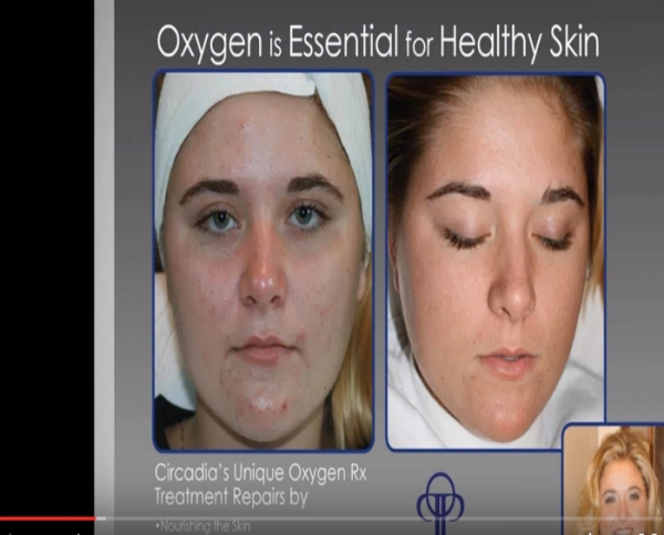 Video: Cocoa Enzyme and Oxygen Webinar