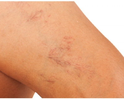 What's your recipe for broken capillaries?