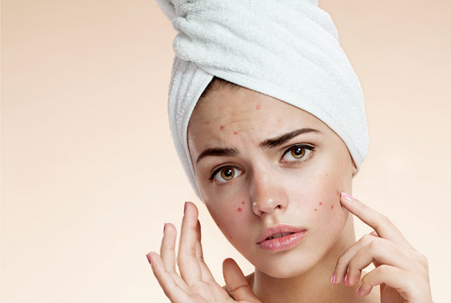 A Step By Step Acne Treatment And Proper Extraction Protocol