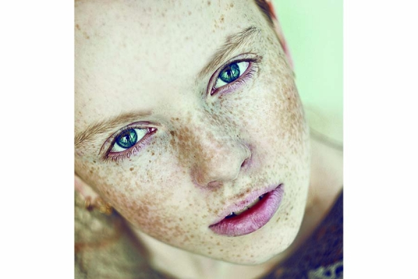 Hyperpigmentation: Looking at Age and Sun Spots through the Right Lens