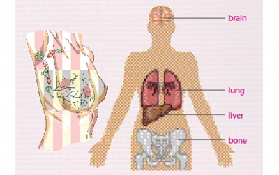 Metastatic Breast Cancer An Even Uglier Side of Breast Cancer