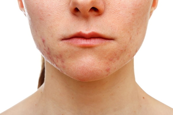 Antimicrobial Peptides: Addressing Microflora and the Microbiome to Treat Acne