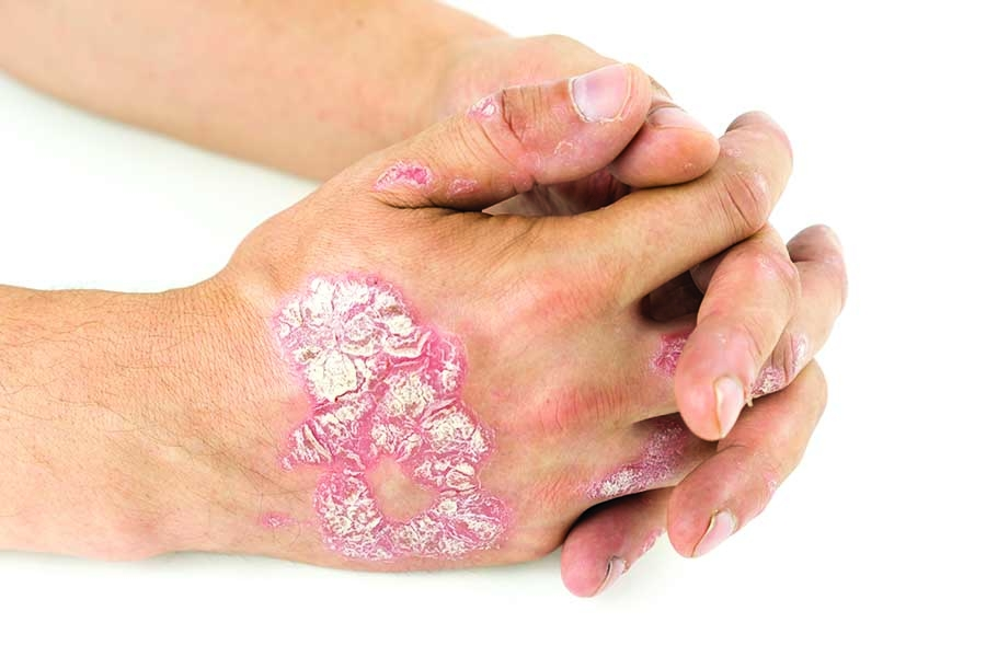 Psoriasis: Evolution, Identification, and Intervention