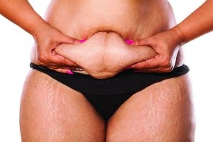 How Obesity Compromises Skin
