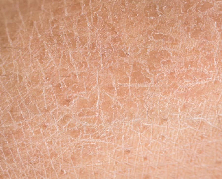 Dealing With Diabetic Skin Care Problems