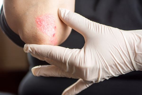 Psoriasis is caused by  a build-up of dry skin.