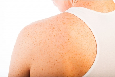 Treating Hyperpigmentation with Inhibitor Peptides