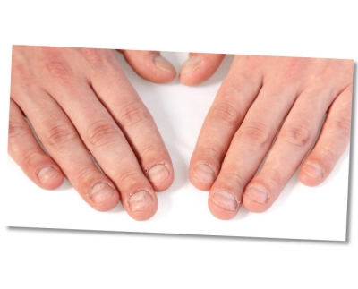 What's your recipe for treating nails that have been damaged by acrylics?
