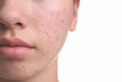 Picking Problems: Addressing Post-Inflammatory Hyperpigmentation in the Spa