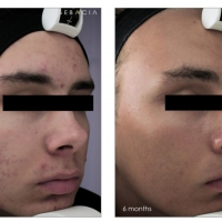 Dr. Kouros Azar the ONLY Plastic Surgeon in America to Introduce New Acne Treatment