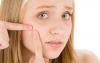 Acne Treatment's Missing Link