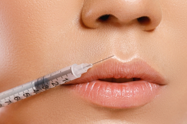 Lip Fillers & Lip Filler Trends