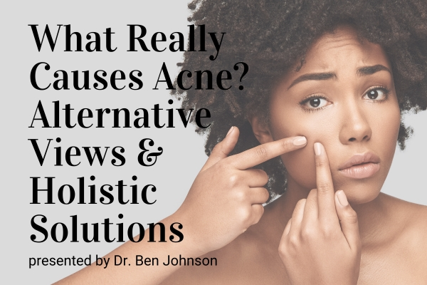 Webinar: What Really Causes Acne? Alternative Views and Holistic Solutions