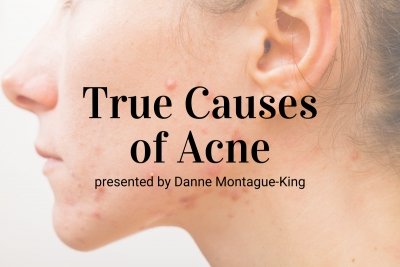 Webinar: True Causes of Acne