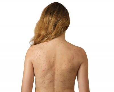 Surprising Causes of Body Acne