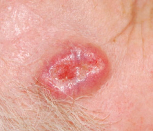 Skin Cancer 101: A review of the 3 most common skin cancers