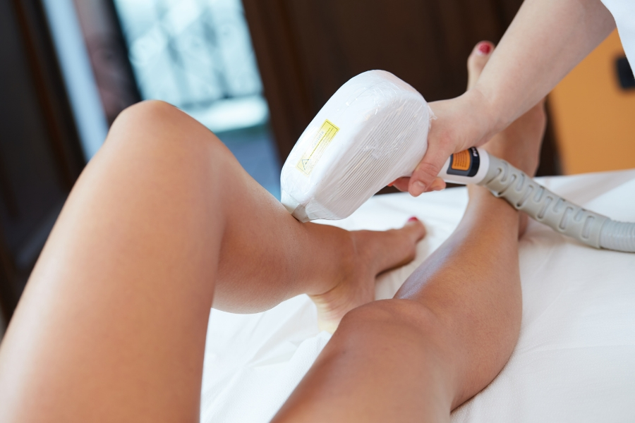 Semi-Permanent Smoothness: A Quick Guide to Laser Hair Removal Treatments