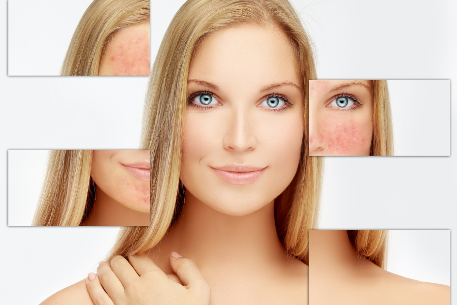 Rosacea Rebuild: How to Strengthen Compromised Skin